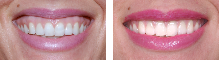 BOTOX ® and Dermal Filler - Chanhassen Family Dentistry