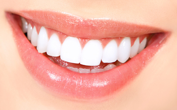 CFD can whiten your smile