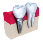 tooth repair & treatments